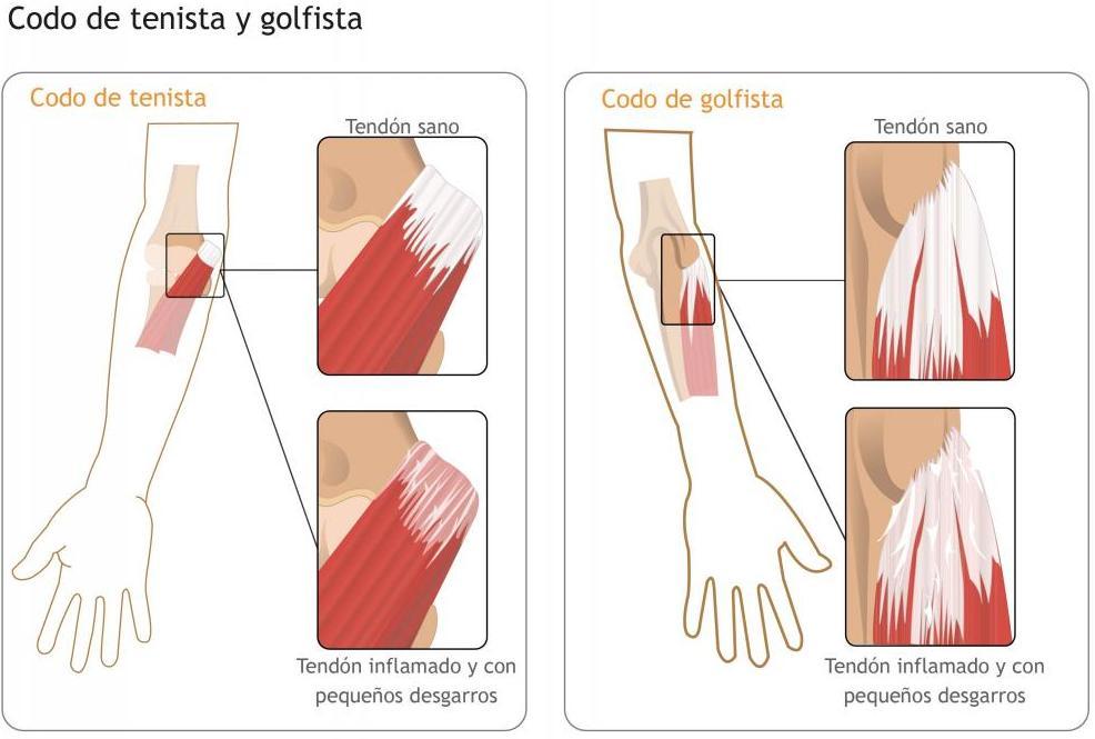 Epicondilitis (tenis) y epitrocleitis (golf)