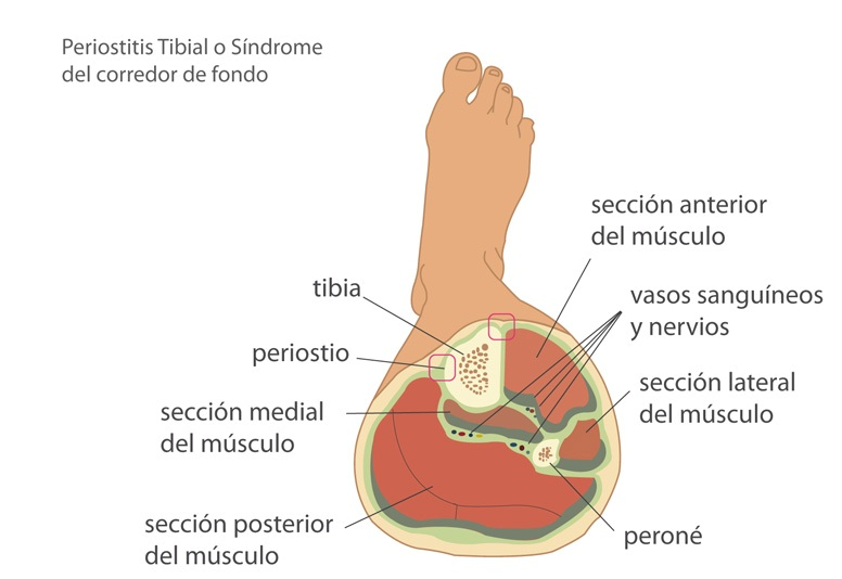 Periostitis Tibial 2