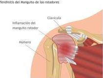 Tendinitis manguito de rotadores