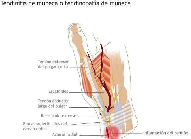 Tendinitis muñeca
