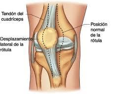 luxación rótula rodilla
