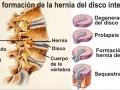 Proceso hernia