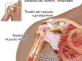 Tendones manguito vision anterior hombro derecho 2